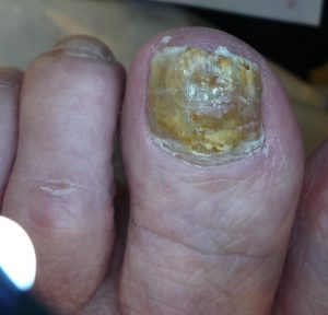 toenail infection affecting the entire nail before treatment with hot laser for nail fungus in Radlett by michael Abrahams