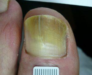 PinPointe FootLaser hot laser treatment in Radlett