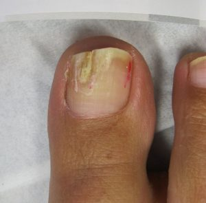Mild toenail fungal infection Mrs S