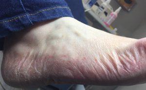 Tinea pedis (athletes foot)side of foot