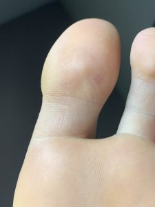 regression of verruca on big toe after dry needling procedure