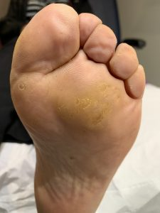 this image shows the foot 2 months after treatment with needling for a multiple verruca