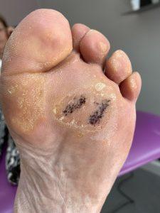 Left foot after needling procedure for verruca