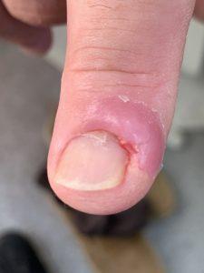 Finger - infection