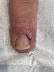 Finger - healing and skin settling down